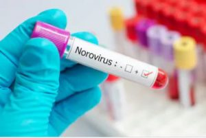 Norovirus Diagnosis